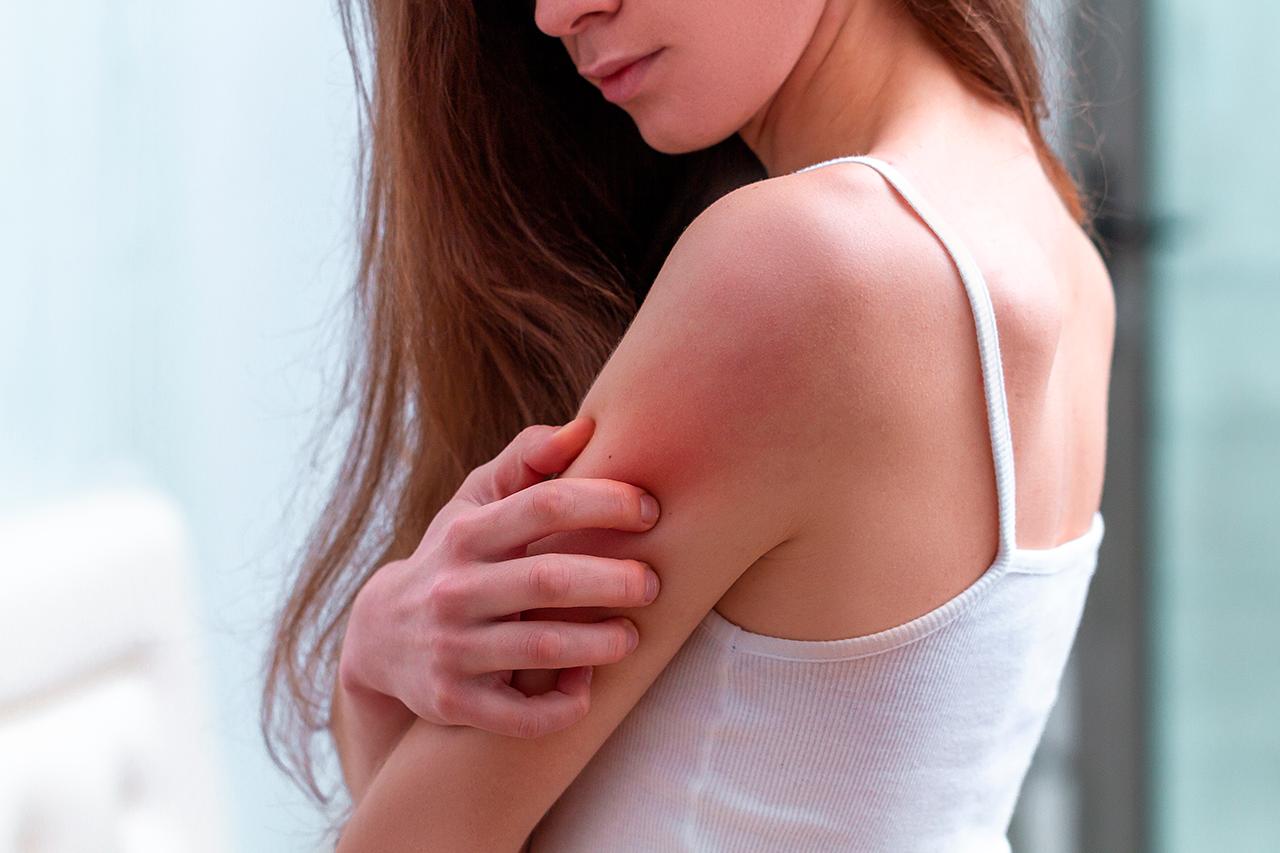 Alergias na pele, como surgem e seus tipos mais comuns